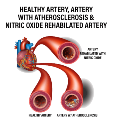 nitric oxide and healthy artery