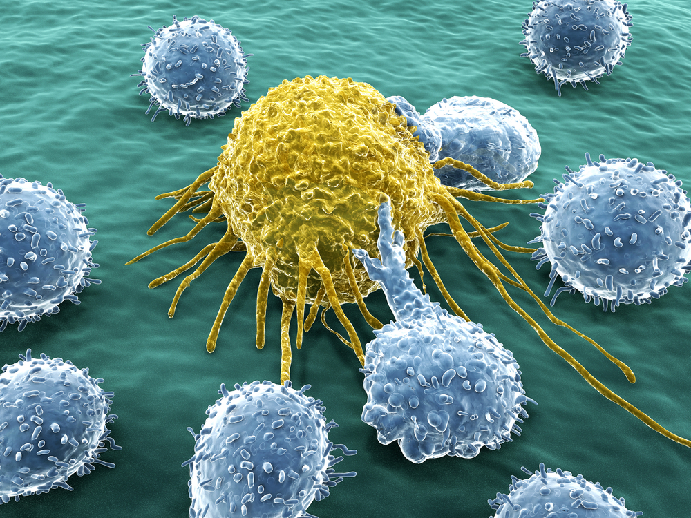 Natural killer cells; looking for cancer cures within the immune system