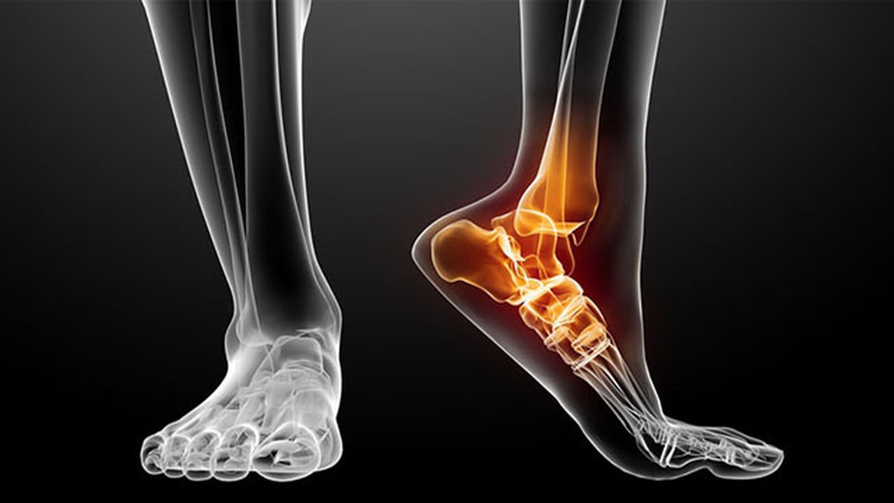 How a microbe may be the key determinant in Rheumatoid Arthritis
