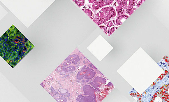 Digital_Pathology